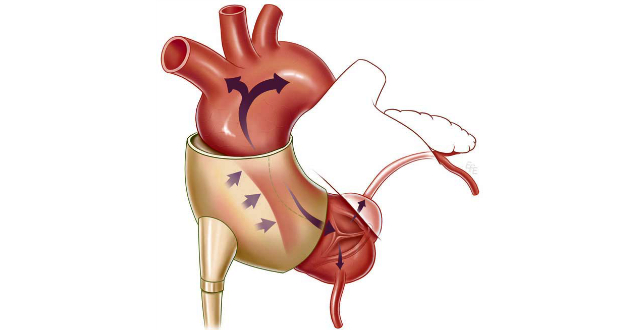 C Pulse insuficiencia cardiaca