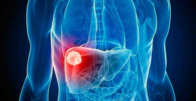 Capsaicina lesiones hepaticas