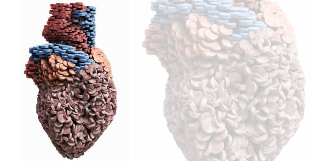 Estudio revela que las personas con colesterol alto, no toman sus medicamentos