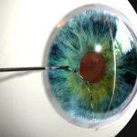 Desarrollan lente de contacto para combatir el glaucoma