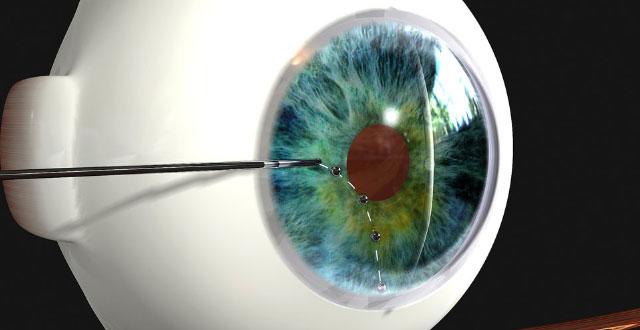 Lente contacto glaucoma